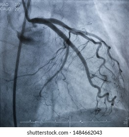The coronary artery angiography (cag) was performed normal left coronary artery (lca).