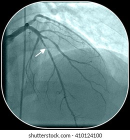 Coronary artery disease. Stenosis of the left anterior descending coronary artery on angiography (marked by arrow)