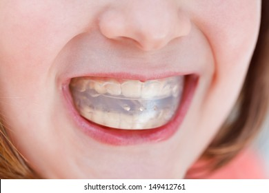 correction of child occlusion by orthodontic trainer