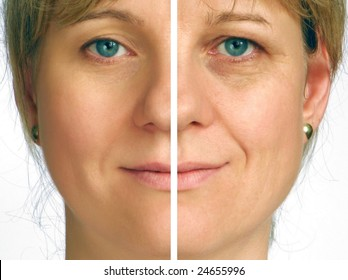 Correction of wrinkles on half face