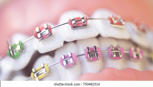Cosmetic dentistry orthodontics dental metal wire teeth brackets teaching student model.