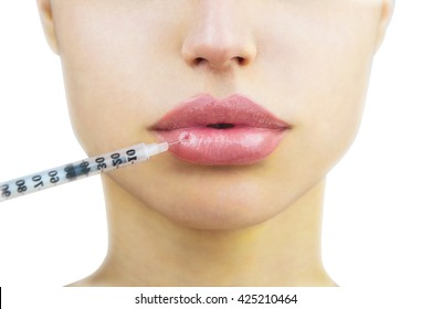 Cosmetic injection in the lower lip of unrecognizable woman, close-up. Beautiful big lips. Plastic and aesthetic surgery