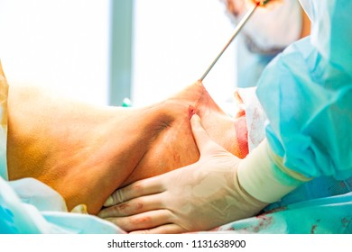 cosmetic liposuction surgery in actual operating room setting showing surgeon hands and cannula