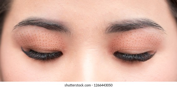 Cosmetic procedure to strengthen the skin of the eyelids. Non-surgical blepharoplasty on plasma IQ apparatus. Cosmetology for facial rejuvenation.