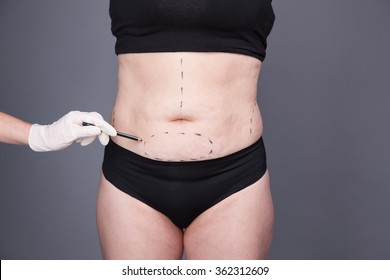Cosmetic Surgery, Abdominoplasty Female abdomen, Liposuction. Cellulite, streamers, adult Women after Obesity and  Delivery.  Fat Woman, Abdominoplasty. Circular tummy tuck.
