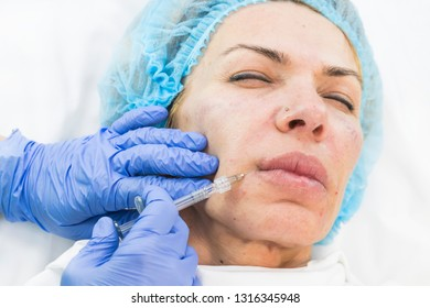 Cosmetic surgery, medicine procedure for an adult woman in a cosmetology clinic.