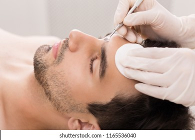 Cosmetician using blackhead remover for cleaning man face in spa salon