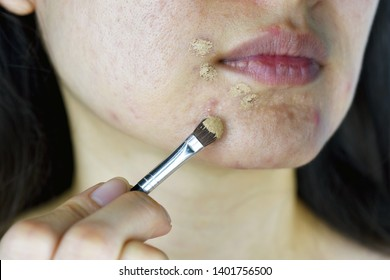 Cosmetics acne, Asian woman applying concealer makeup to hide acne facial skin problem, Pimples correcting coverage.
