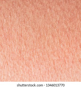 cosmetological textured background from pink healthy skin of the body brow century close-up, covered with goosebumps and fine wrinkles