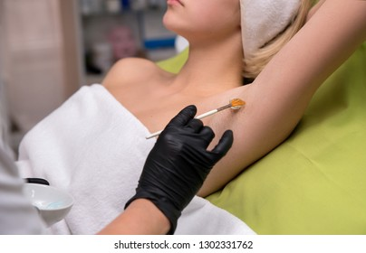 Cosmetologist doctor applies a hair removing gel on patient body. Hair removal cosmetology procedure from a therapist at cosmetic beauty spa clinic. Laser epilating and cosmetology. Sugar and wax.