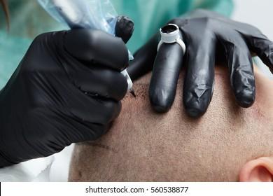 Cosmetologist making permanent makeup on man head - tricopigmentation