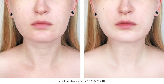 A cosmetologist prepares the patient for surgery: contour plastics of the neck, mesotherapy or botulinum therapy. Wrinkles and creases in the neck, rings of Venus