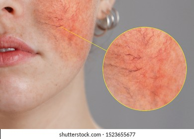 Cosmetology and rosacea. Close-up portrait of female face, cheeks with severe inflammation, blood vessels and rosacea