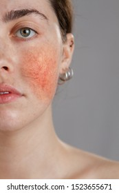 Cosmetology and rosacea. Portrait of half the face of a young woman with rosacea on her cheeks