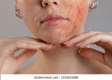 Cosmetology and rosacea. Portrait of half a woman's face. Hands at the chin, one cheek with severe rosacea and inflammation. Close up