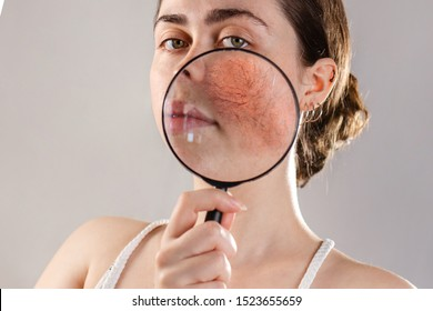Cosmetology and rosacea. A young woman holds a magnifying glass near her face, showing the inflamed skin of her cheeks with rosacea. Close up