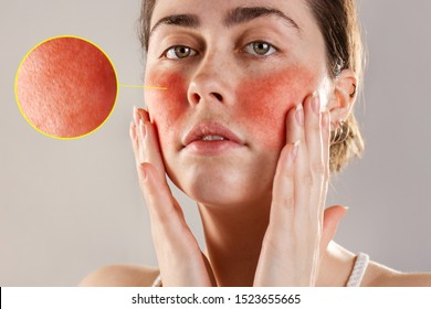 Cosmetology and rosacea. A young woman holds her hands to her reddened, inflamed rosacea cheeks. The enlarged image of blood vessels. Close up