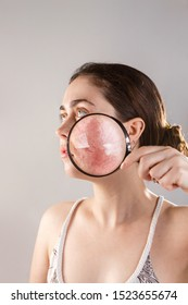 Cosmetology and rosacea. A young woman holds a magnifying glass near her face, showing the inflamed skin of her cheeks with rosacea and vessels. Copy space
