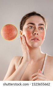 Cosmetology and rosacea. The young woman runs her hands over her reddened, inflamed cheeks and rosy forehead. The enlarged image of blood vessels