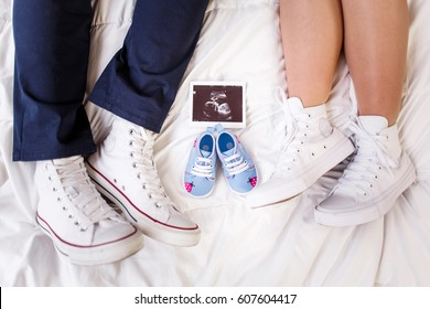 The couple lies on the bed, the feet of a couple in love, in love with sneakers, ties up laces, three shoes, a white sheet, beautiful sneakers, three pairs of shoes, small sneakers, Pregnancy