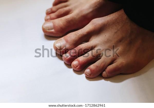 足 が 痛い コロナ