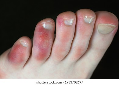 Covid toes. Coronavirus symptoms - swelling and discoloration, purplish color, pain and rough skin.