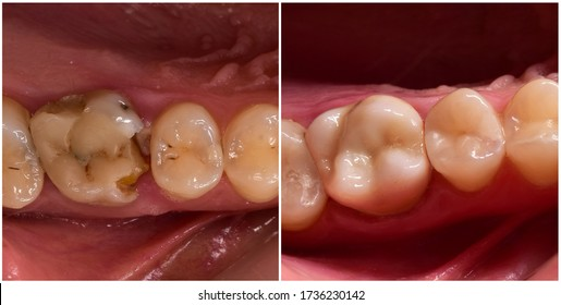 cown and composite restoration before and after dental treatment