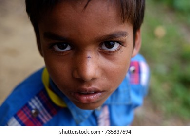 COX'S BAZAR, BANGLADESH: OCTOBER 11, 2017- The face of the Rohingyas who saw sharp in Ukiah.