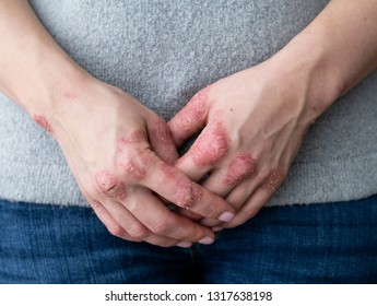 Cracked, flaky skin on the hands. Dermatological problems of psoriasis. Hard, horny and cracked skin on the finger in a woman's hands. Hand stains, dry skin. Psoriasis, allergy
