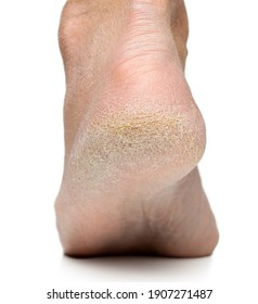Cracked heel on human foot, dry, flaky skin, close up shot with white background.Damaged skin