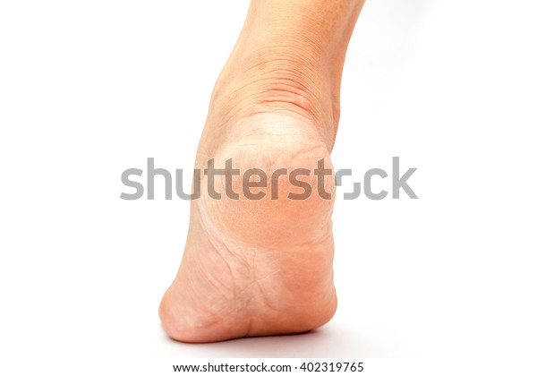 Cracked Heels Foot Fungus On White People Stock Image 402319765