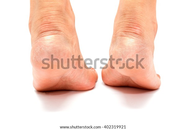 Cracked Heels Foot Fungus On White Stock Photo Edit Now 402319921