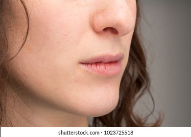 Cracked lips of female mouth