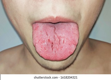 Cracked tongue /  Geographic tongue