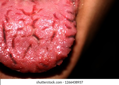 Cracks in the tongue. Geographic tongue. Candidiasis. Candida.