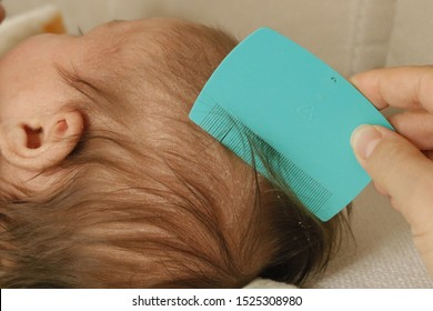 Cradle cap comb removing from baby`s head