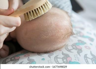 Cradle cap on a newborn child head. Parent brushing head of a child because of a cradle cap.