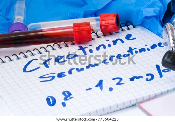 Creatinine or serum creatinine in basic metabolic test. Laboratory test tubes with blood, stethoscope, smear or film and gloves are near note with text creatinine on table in doctor office