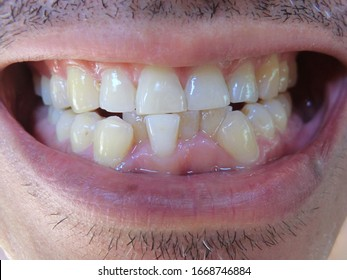 crooked malocclusion teeth Asian man middle -Aged