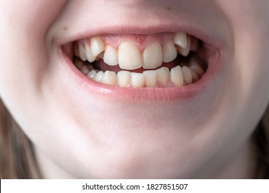 Crooked teeth close-up. Correction of malocclusion is required.
