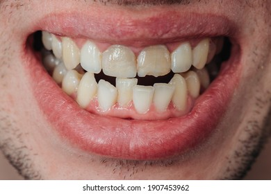 Crooked teeth. Extended tooth with a chip