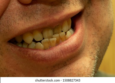crooked teeth and malocclusion in a young man, close-up mouth