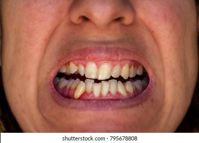 crooked yellow teeth