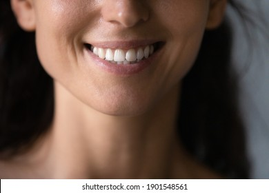 Crop close up of smiling young Caucasian woman show good healthy white event teeth. Happy millennial female client or customer satisfied with dental oral treatment at dentist office or clinic.