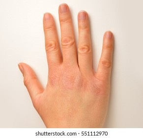 croped shot of hand with very dry skin and deep cracks on knuckles