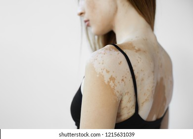 Cropped back view of beautiful young European woman with skin condition that causes loss of melanin posing indoors. Slender slim female model in black tank top suffering from vitiligo disorder