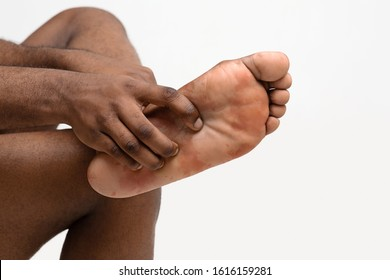 Cropped of black man scratching his foot, suffering from fungus