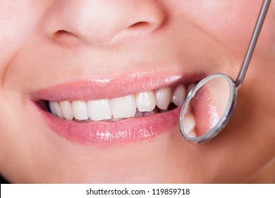Cropped closeup of the mouth of a smiling woman with perfect teeth with a small round dentists mirror held to one side