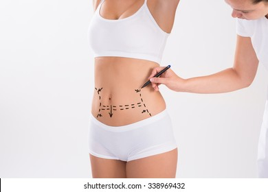 Cropped image of surgeon preparing woman for liposuction surgery over white background