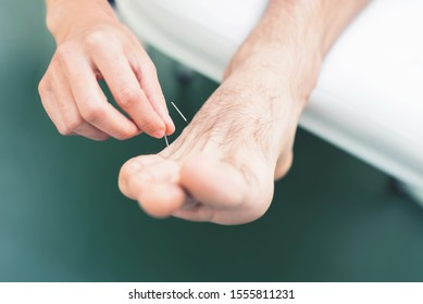 Cropped picture of an arm stabbing an acupuncture needle in mans leg. Closeup of his foot and stab with needle.